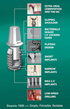 Implant court Bicon