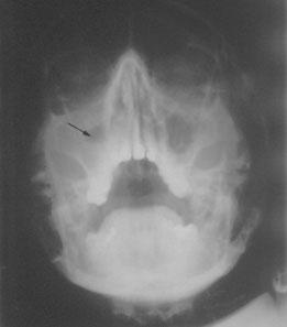 les sinusites maxillaires d origine dentaire du diagnostic au traitement dossiers du mois