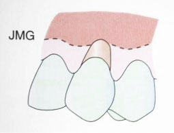 Fig. 1a : Récession gingivale de classe I (Sato 2000).