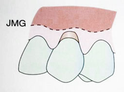 Fig. 2a : Récession gingivale de classe II (Sato 2000).