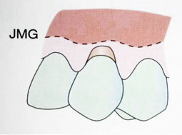 Fig. 3a : Récession gingivale de classe III (Sato 2000).
