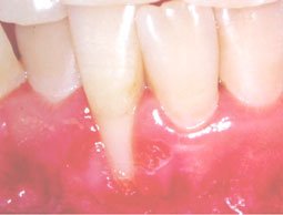 Fig. 3b : Récession gingivale de classe III de Miller (1985) avec destruction marginale du support  interdentaire