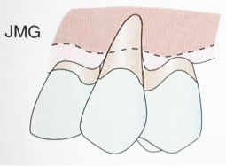 Fig. 4a : Récession gingivale de classe IV (Sato 2000).