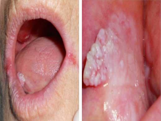 papiloame bucale virus hpv sintomi nell uomo