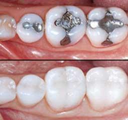 Trois pays africains r duisent l 39 utilisation de l 39 amalgame - Affichage obligatoire cabinet dentaire ...