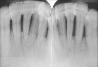 Fig. 2 :  Radiographies montrant la contention des dents parodontalement atteintes