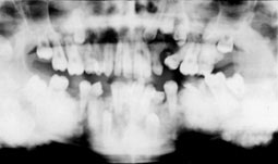 Diagnostic différentiel des radio-opacités des maxillaires | Conseil ...