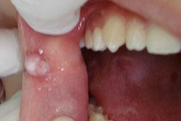 Interieur de la bouche blanche 28 images la for Interieur bouche
