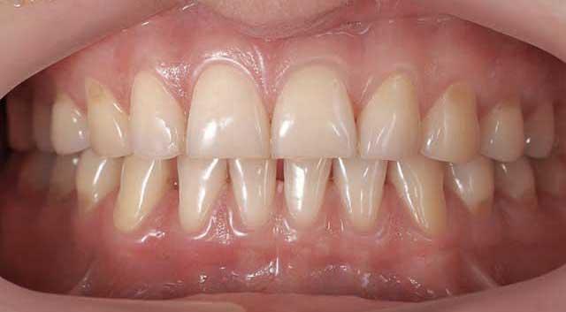 Comment prendre soin de vos gencives et prévenir les maladies parodontales ?