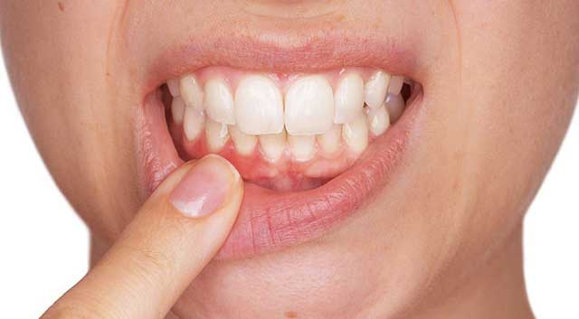 Photo illustrant une parodontite