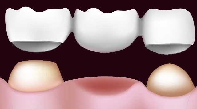 Bridges dentaires : Avantages et inconvénients