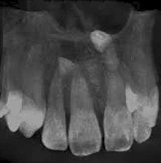 Radiographie occlusale
