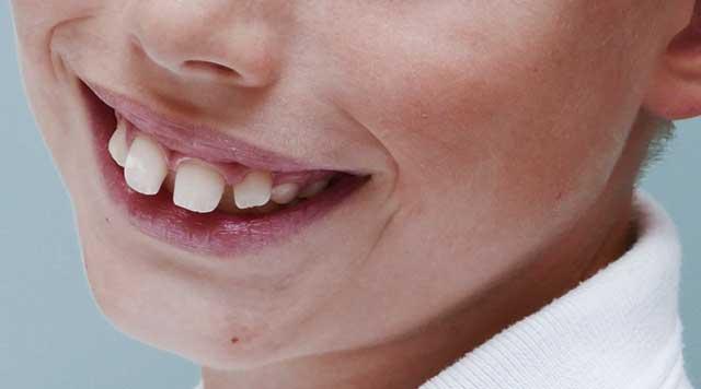 Traitement orthodontique précoce chez l'enfant