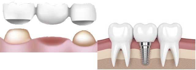 Quel choix entre implant dentaire et bridge ?