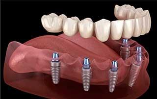 Prothèses dentaires sur implants