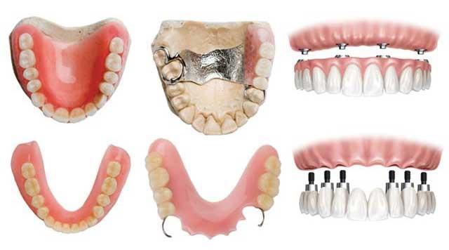 Types de prothèses dentaires