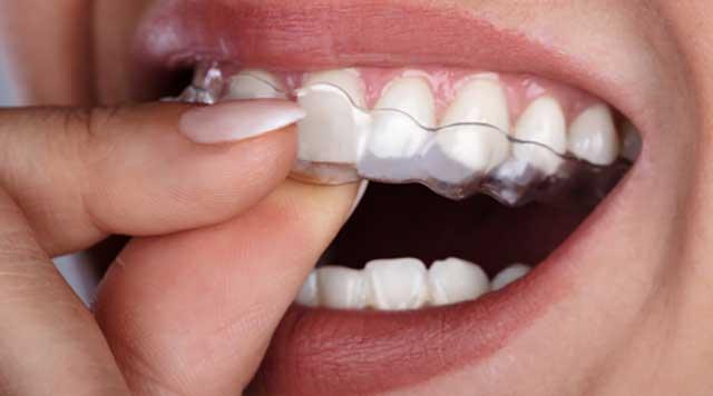Fatigué de grincer les dents ?