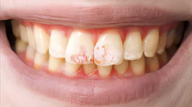 Le fluor : bon ou mauvais pour vos dents ?